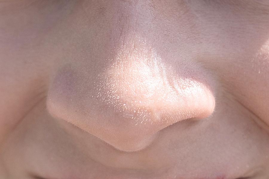 顎 白い ぶつぶつ 顔にできる脂肪の塊(白いブツブツ)の取り方、除去とは?